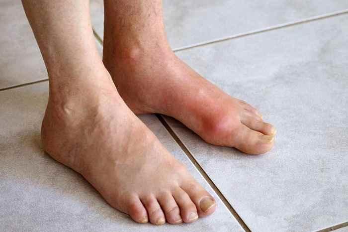 درد رگ روی پا