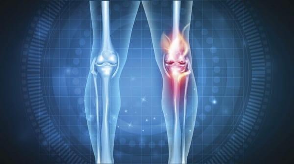 شکستگی استخوان یکی از علل پای پرانتزی