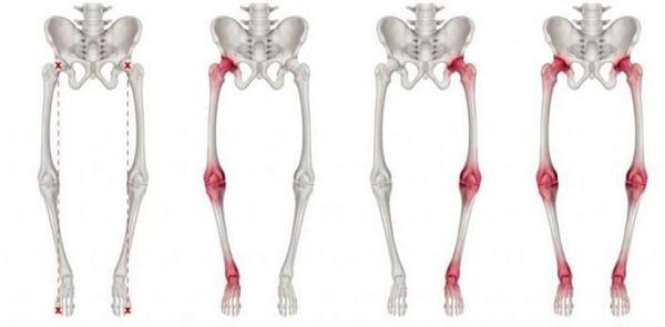 علل پای پرانتزی و درمان