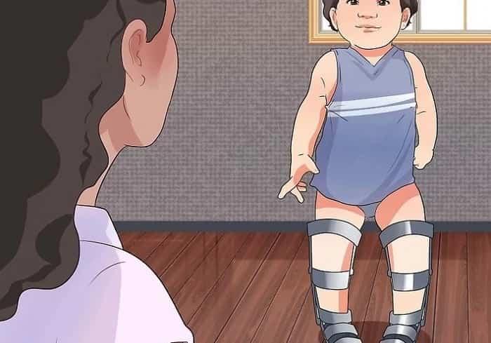 استفاده از بریس برای درمان پای پرانتزی