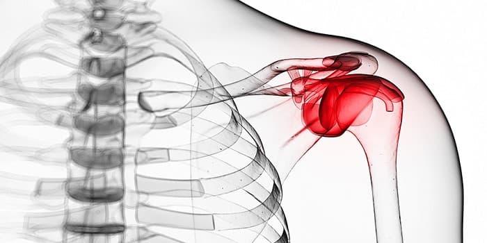 درمان شانه یخ زده یا فروزن شولدر با فیزیوتراپی، شاک ویو و ورزش