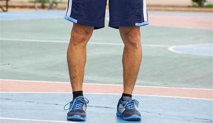 درمان پای پرانتزی خفیف با بریس، ماساژ، ورزش و فیزیوتراپی