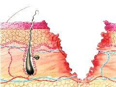 درمان سوختگی های سطحی و شدید
