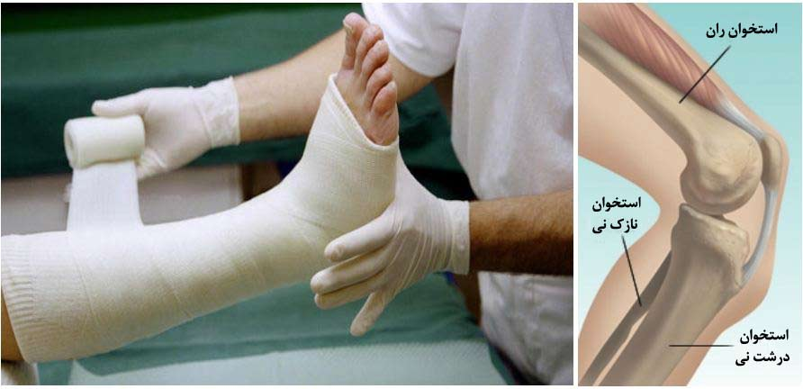درمان شکستگی استخوان ران و ساق پا با فیزیوتراپی و ورزش