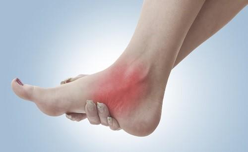 علت و درمان درد مچ پا با فیزیوتراپی و ورزش