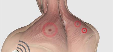تزریق در نقاط ماشهای برای درمانرگ به رگ شدن گردن