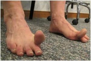 حرکت ضربه زدن برای درمان انگشت چکشی