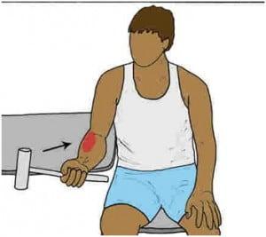 درمان دچرخشی ساعد به بالاررفتگی مفصل آرنج