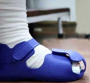 گچ گرفتن برای درمانشکستگی انگشتان پا