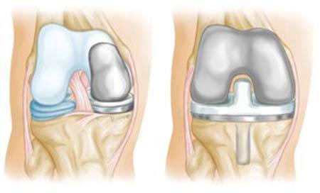 آرتروپلاستی (تعویض کل یا قسمتی از زانو) برای درمان آرتروز زانو