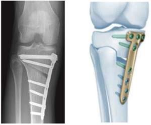 استئوتومی (جراحی برش استخوان) برای درمان آرتروز زانو
