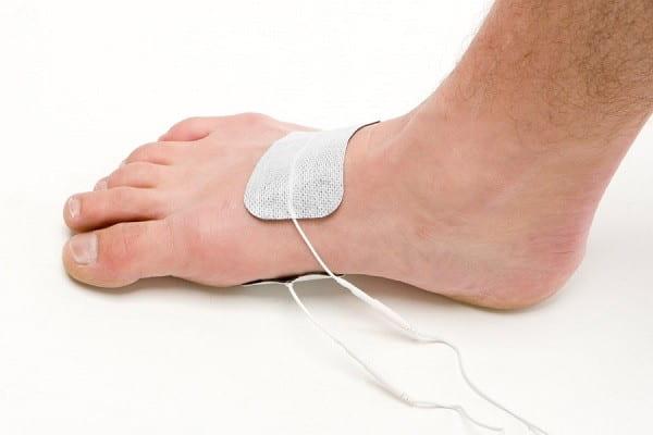 درمان درد شست پا با الکتروتراپی