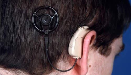 درمان کم شنوایی و افت شنوایی از طریق کاشت حلزون