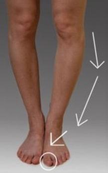 درمان زانو و پای پرانتزی در کودکان و بزرگسالان با ورزش و جراحی