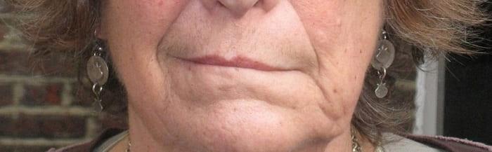 درمان فلج بل (فلج عصب صورت) با فیزیوتراپی و حرکات اصلاحی