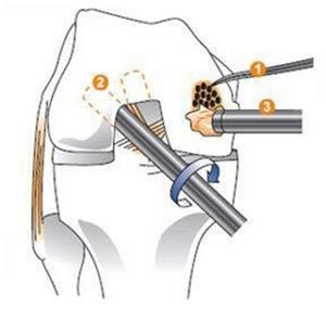 پیوند غضروف برای درمان آرتروز زانو