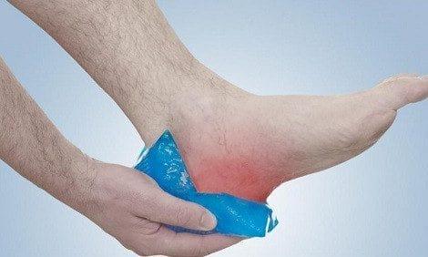 استفاده از یخ برای درمان خار پاشنه