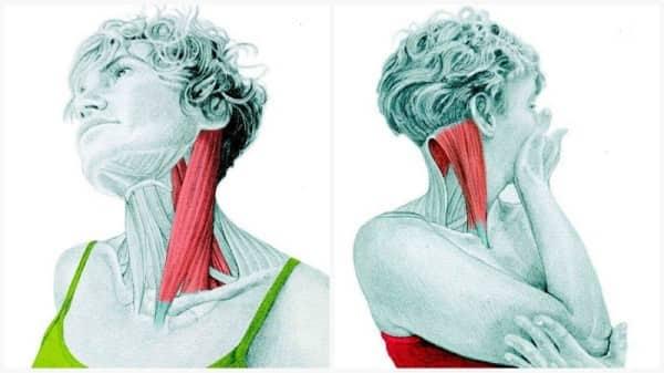 درمان سردرد و میگرنتمرین کششی عضله بازکننده گردن برای