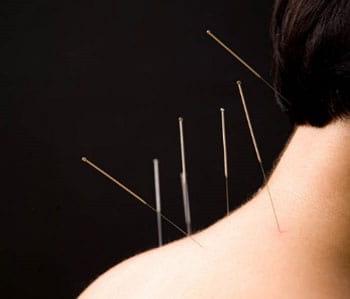 درمان گردن درد با طب سوزنی