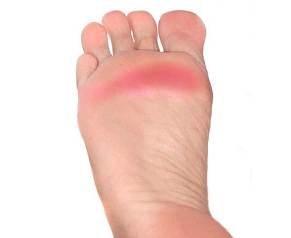 درد زیر انگشتان پا