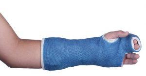 درمان شکستگی انگشتان دست