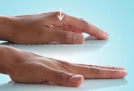 کشش انگشتان