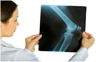 تشخیص زانو درد